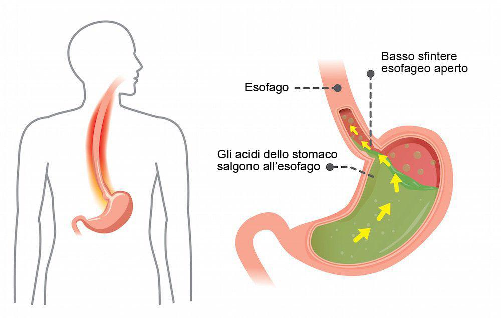 sintomi reflusso gastrico